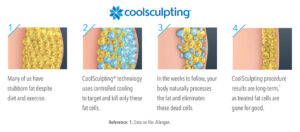 Coolsculpting Info