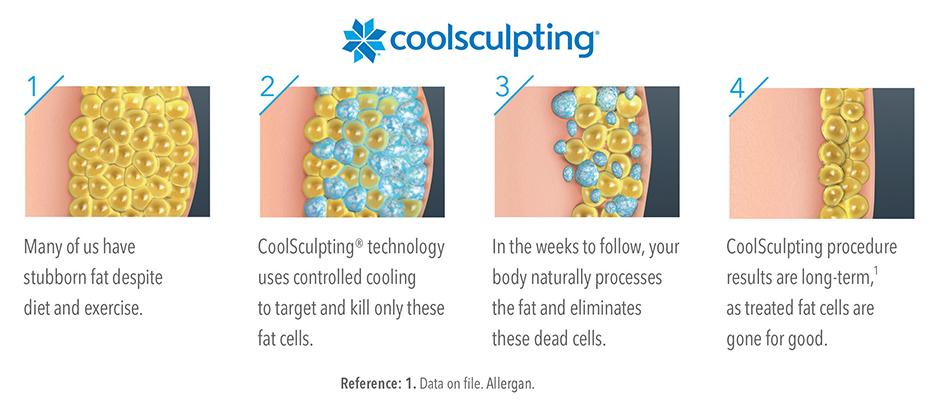 Coolsculpting Info