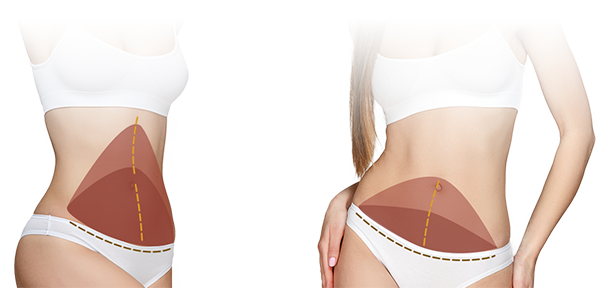 Tummy Tuck Surgery San Jose East Bay CA